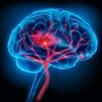 Cerebrovascular Clinical Research Update