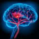 Cerebrovascular Clinical Research Update