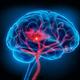 Multidisciplinary Cerebrovascular Board