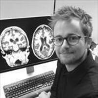 Zilkha Seminar Series: Renaud La Joie PhD - Amyloid and Tau PET Imaging: Relationships with Neuropathology and Clinical Heterogeneity in Alzheimer's Disease
