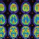 International Symposium on Neurodegenerative Diseases
