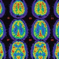 Mild Cognitive Impairment and Psychosocial Education Group