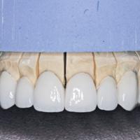 Smile Reconstruction Using Porcelain Veneers