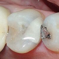 Silver Diamine Fluoride (SDF) and Glass Ionomer Cement (GIC)