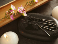 Well-U:  What You Didn't Know About Acupuncture